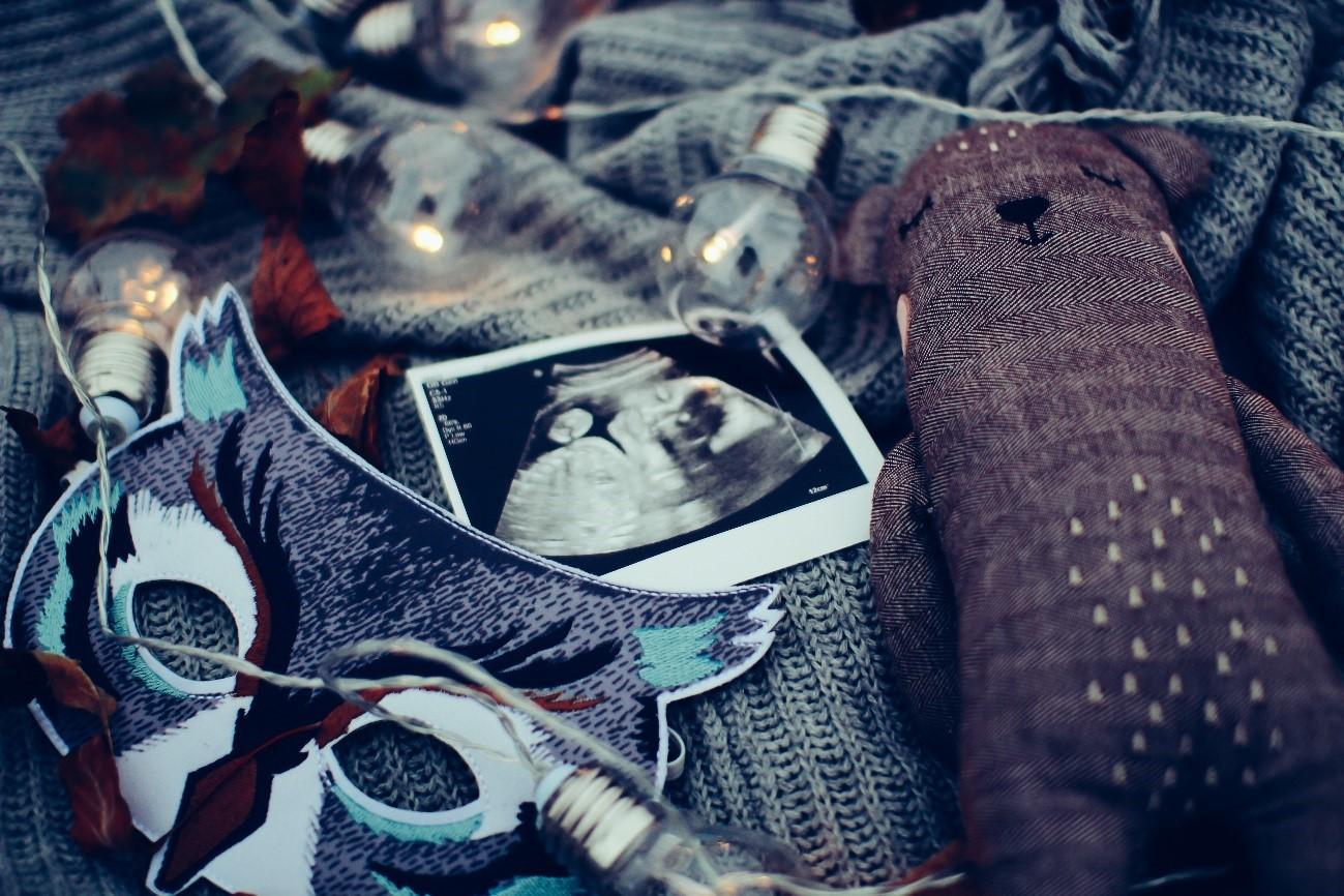 """出生前診断の基礎知識と全染色体を調べることができる""""Serenity24""""について"""